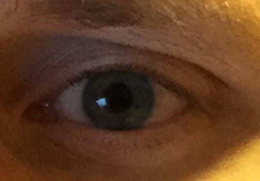 eye100-5